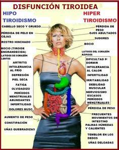 10 señales de que tienes un problema de Tiroides y 10 soluciones.