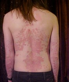 Psoriasis and Its Cure