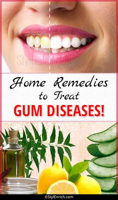 Home Remedies To Treat Gum Diseases