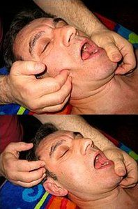 Medical Massage for Jaw and Joint Disorder