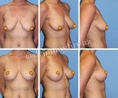Before/After Breast Lift (NO IMPLANTS) Need a lift? Mastopexy AKA Breast Lift can restore the shape of your breasts without implants. A breast lift restores shape and volume that may have been lost due to age weight loss or nursing. #TransformationTuesday