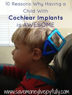 10 Reasons Having a Child with Cochlear Implants is Awesome