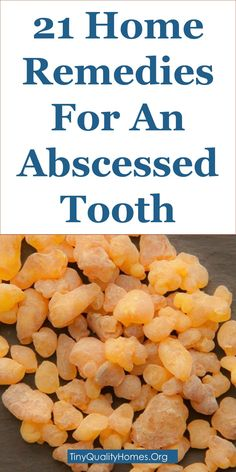 Abscess tooth is the buildup of pus or other infected material in the center of a tooth or between a tooth and gum. An abscessed tooth is caused by a bacteria. Causes of an abscessed tooth include; tooth decay, ingress of bacteria through chipped or broken tooth, bacteria infection via enamel opening or a trauma to a tooth. Symptoms of tooth abscess are; mouth odor, foul taste in mouth, toothache, pain when chewing, tooth sensitivity to hot or cold food, swollen glands of the neck…