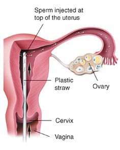 IUI, or intrauterine insemination, is a relatively simple infertility treatment, where a small tube is used to place specially washed sperms directly into the uterus. You may know of IUI by the more commonly used term artificial insemination (AI). IUI and AI are one and the same fertility treatment. http://www.giftivf.com/iui.html