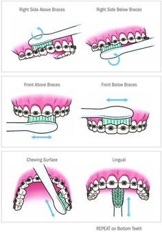 Video shows 3 best ways to remove teeth plaque or tartar at home without visiting a dentist for your dental cleaning. Remedies For Strong and White Teeth: ht. Dental Braces, Teeth Braces, Dental Care, Kids Braces, Braces Smile, Gold Braces, Teeth Dentist, Braces Humor, Dark Blue Braces