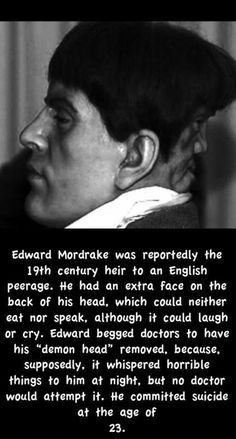 although people are unsure if Edward Mordrake's story is more fiction than fact, it's a very sad story none the less