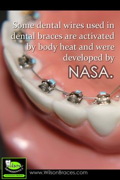 Orthodontic Fact #7  Some dental wires used in dental braces are activated by body heat and were developed by NASA.  #gooddentalcare