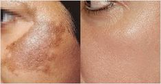 Hyperpigmentation of the skin can cause uneven color and dark patches. Excessive production of melanin is responsible for this condition. Hyperpigmentation can occur on almost any part of the body, including the face, neck, hands, arms and legs. The root Skin Tips, Skin Care Tips, Age Spots On Face, Skin Spots, Skin Care Remedies, Natural Remedies, Prevent Wrinkles, Tips Belleza, Acne Scars