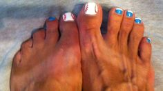 Baseball toes! I had the nails done to match, loooove them!