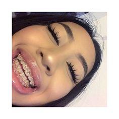 She has braces Cute Girls With Braces, Cute Braces Colors, Dental Braces, Teeth Braces, Dental Care, Maquillage On Fleek, Braces Tips, Getting Braces, Invisible Braces