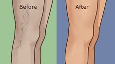 Natural Remedies Varicose Veins Top 5 Home Remedies To Remove Varicose Veins in Your Legs - Varicose Vein Removal, Varicose Vein Remedy, Varicose Veins, Home Remedies, Natural Remedies, Oral Hygiene, Natural Treatments, Health And Beauty, How To Remove