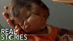 The Girl With Two Faces (Medical Documentary) - Real Stories - YouTube