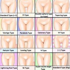 Vagina type chart