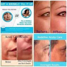 Botox in a Box!?!? Fill a wrinkle while you sleep...Yes, please!!! Rodan + Fields Acute Care. https://marynolan.myrandf.com/