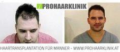 Haartransplantation Frankfurt, Haarverpflanzung Hessen