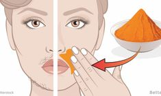 Get rid of facial hair with these natural remedies Remove Unwanted Facial Hair, Unwanted Hair, Beauty Secrets, Beauty Hacks, Beauty Tips, Upper Lip Hair, Facial Tips, Wax Hair Removal, Facial Scrubs