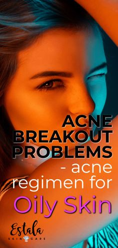 Acne regimen for oily skin to solve acne breakout problems! A clean face will help give you clear skin with the right acne skin care routine in place. Get more face care tips from Estala Skin Care. Oily Skin Treatment, Acne Treatments, Face Care Tips, Skin Care Routine For 20s, Acne Causes, Clear Skin Tips, Acne Breakout, Acne Skin, Acne Face