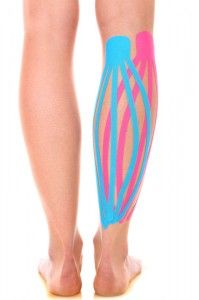 Kinesio taping techniques using tape to help with oedema drainage after injury.