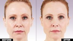 Juvederm Voluma Dermal Filler FDA approved for the cheeks and lasts for 2 years. Call Bella Derma Medi Spa for a consultation at 949-552-6230.