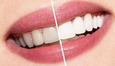 http://www.fimina.com/2016/01/le-secret-pour-des-dents-blanches-comme.html