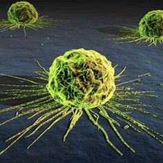 Why Medicine Won't Allow Cancer to Be Cured --- This should be headline news but than again... It's been known for some time now.  #cancer #naturalcures #health