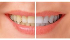 Looking for best service in teeth whitening in Pune. Sweet Smile Dental Clinic is one of the best Cosmetic Dentistry Clinic in Pimpri Chinchwad & teeth whitening in Pune. They offer the latest teeth whitening services with latest technology available today.