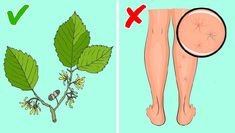 Witch hazel can be one of the best alternatives for treating various skin disorders, including swollen veins. It contains tannins and volatile oils that help to restore the structure of veins Aloe Vera, Jus D'orange, Hormone Imbalance, Varicose Veins, Rodin, Blood Vessels, Alternative Medicine, Good To Know, Immune System