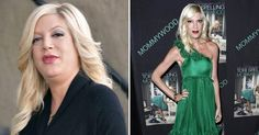 tori-spelling-before-after