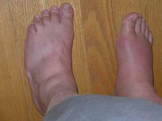 Un remède incontournable contre les pieds gonflés - Astuces de grand mère