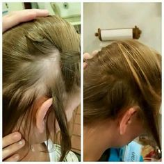 Incredible hair growth using monat products