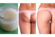 Remove Stretch Marks And Cellulite Forever Easy With Only 3 Ingredients! - Myeva for Healthcare, Skin care & Beauty Coconut Oil Cellulite, Cellulite Scrub, Cellulite Remedies, Cellulite Workout, Anti Cellulite, Butt Workout, Stretch Mark Remedies, Stretch Mark Removal, Stretch Marks