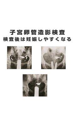 子宮卵管造影検査は、検査後に妊娠しやすくなることで知られています。子宮卵管造影検査のあとの6か月、とくに最初の3か月は妊娠しやすいといわれています。#子宮卵管造影検査 #子宮卵管造影検査後 #子宮卵管造影検査費用 #子宮卵管造影検査いつ  #子宮卵管造影検査後妊娠した Movie Posters, Film Poster, Billboard, Film Posters