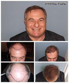 Transplantacia vlasov fue vysledky pred po fotografie joseph czinger - PHAEYDE Klinika