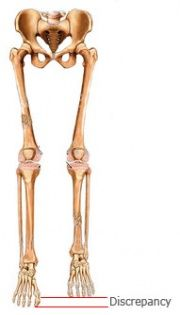 Leg Length Discrepancy - Physiopedia, universal access to physiotherapy knowledge.