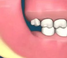 Dental Assistant Study, Dental Hygiene, Dental Health, Dental Braces, Dental Surgery, Dental Wallpaper, Dental Photos, Dental Videos, Dental Posters