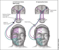 In general, due to the cross-innervation of nerve fibres, a LMN lesion results in paralysis or weakness of both upper and lower parts of the face, whereas an upper motor neuron (UMN) lesion usually spares the upper part of the face (i.e patient can wrinkle forehead on that side). Note however that this is not always absolute.