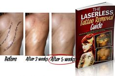 The Laserless Tattoo Removal Guide Review Tattoo Removal Process, Skin Burns, Laser Removal, Facebook Marketing, Seo Marketing, Skin Secrets, Laser Tattoo, New Career, Perfect Skin