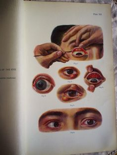 """☤ MD ☞☆☆☆ 1907 antique medical illustration - """"Various Affections of the Eye"""", chromolithograph."""