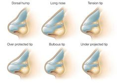 Common Nasal Conditions That Can Be Improved with Rhinoplasty Surgery at SpaMedica Toronto