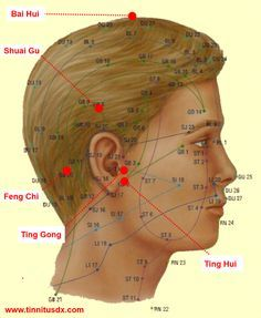TOP 5 TINNITUS ACUPRESSURE POINTS ALL ACUPUNCTURISTS USE, TINNITUSDX