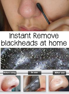 Remove blackheads at home in 3 natural ways