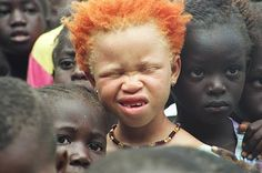 Beautiful albino African American child, with the most fabulous red hair. He is…