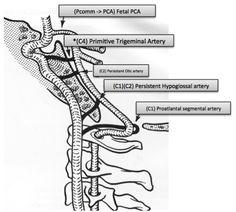 Arteries Anatomy, Brain Anatomy, Medical Anatomy, Internal Carotid Artery, Nursing, Healthy, Fitness, Medicine, The Brain