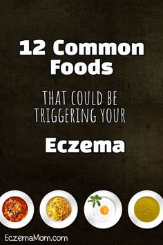 12 Common Foods That Could Be Triggering Your Eczema - EczemaMom Dr Oz, Toddler Eczema, Ezcema Diet, Eczema Causes, Severe Eczema, Kim Kardashian, Eczema Relief, Diet, Crates