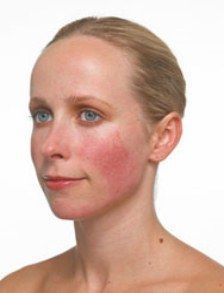Common Causes Of Rosacea & How To Control It