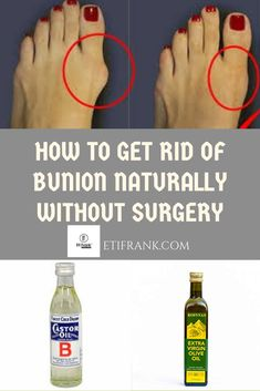 In this video, I will show you how to get rid of bunion which is usually associated with pains and swelling. This home remedy helps to get rid of the pains a. Bunion Remedies, Get Rid Of Bunions, Bunion Pads, Bunion Relief, Natural Remedies For Allergies, Health Trends, Good Health Tips, Exercises, Tips