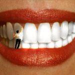 A Man was very conscious on their first wedding night Dental Design, Dental Art, First Wedding Night, Dental Pictures, Dental Videos, Dental World, Dental Photography, Dental Posters, Dental Technician