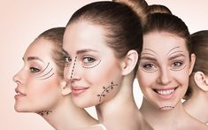 Best anti aging and anti wrinkle cream recommended anti wrinkle cream,skin care products for wrinkles homemade tips for skin,best anti aging sheet mask top anti aging eye creams. Cosmetic Treatments, Anti Aging Treatments, Double Menton, Eyelid Surgery, Celebrity Plastic Surgery, Cosmetic Procedures, Les Rides, Sagging Skin, In Cosmetics