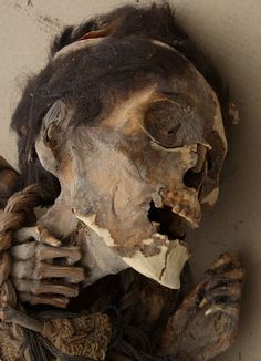As expected, the team detected arsenic in the mummy's hair and in the soil. They also discovered skin conditions indicative of arsenic poisoning.