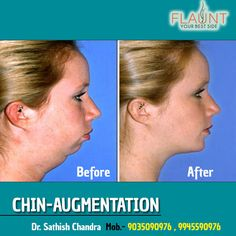 CHIN-AUGMENTATION Please visit us- www.cosmeticsurgerymangalore.com